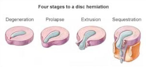 The above diagram shows the stages of disc herniation and what a disc extrusion looks like.